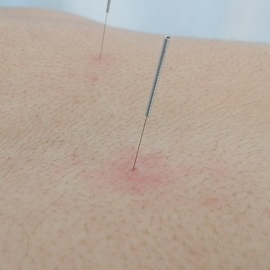 Acupuncture based techniques